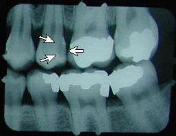 x-ray with cavity